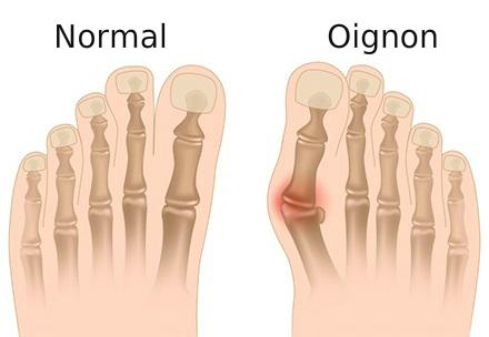 Image d'un pied normal et d'un pied avec un oignon