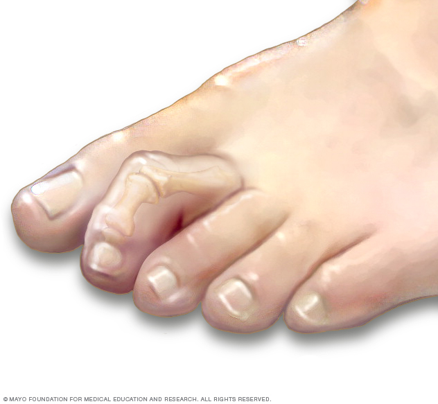 Déformation des orteils